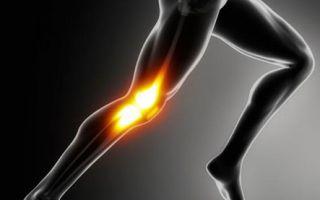Как вылечить артроз коленного сустава 2 степени