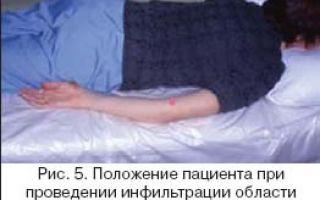 Наружный эпикондилит