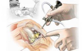 Воспаление мениска симптомы
