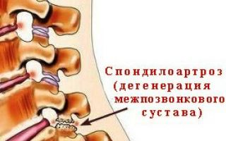 Шейный спондилоартроз лечение