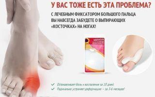 Растяжение связок в колене лечение