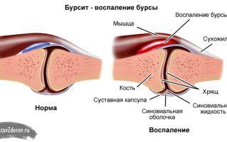 Воспаление сустава на большом пальце ноги