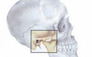 Остеоартроз челюстного сустава