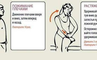 Упражнения для хондроза шеи
