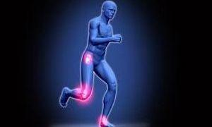 Субхондральный остеосклероз замыкательных пластинок