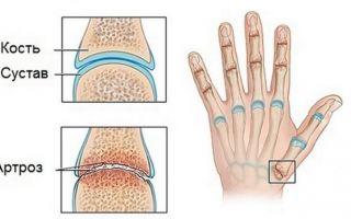 Боль в фаланге большого пальца на руке
