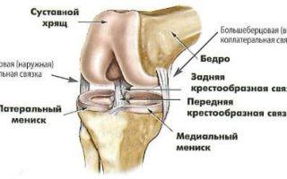 Повреждение боковой связки коленного сустава