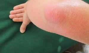 Последствия бурсита локтевого сустава