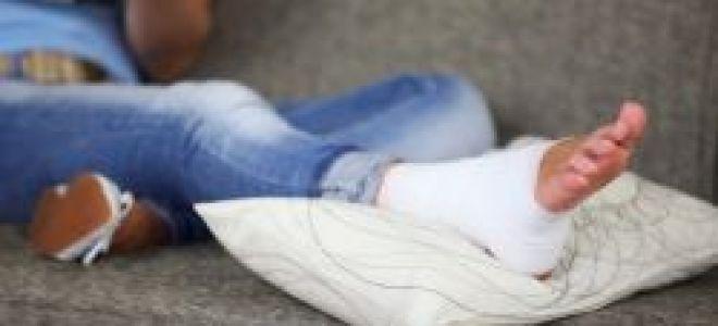 Голеностопный сустав лечение в домашних условиях