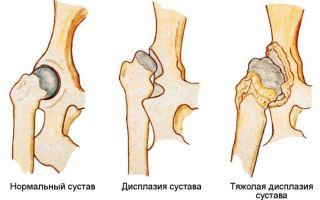 Упражнения на тазобедренный сустав