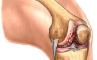Чем отличается артроз от артрита коленного сустава