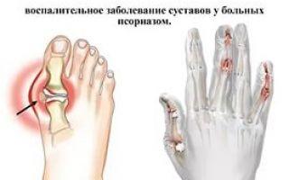 Средство от артрита