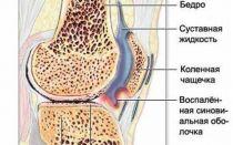 Болит колено без причины
