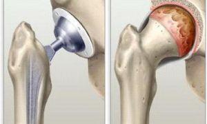 Болезнь остеоартроз