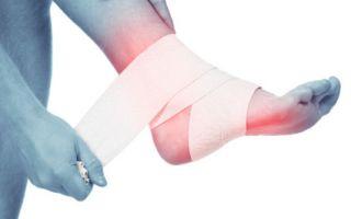 Симптомы вывиха голеностопного сустава
