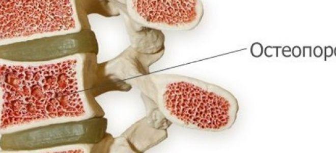 Что такое остеопороз позвоночника