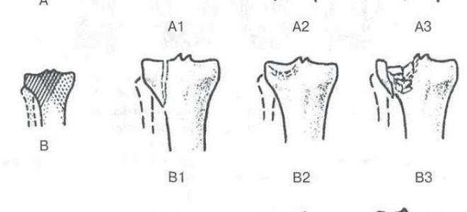 Операция на голеностопном суставе при переломе