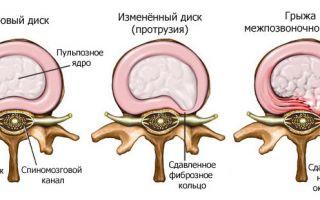 Протрузия дисков позвоночника шейного отдела как лечить