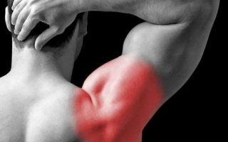 Плечелопаточного периартрита