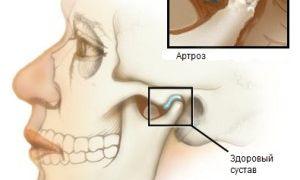 Болят суставы челюсти