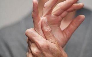 Полиартрит рук симптомы и лечение