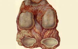 Сильная боль в тазобедренном суставе