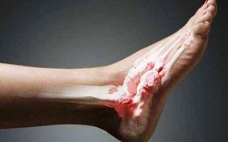 Признаки вывиха ноги
