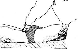 Мышцы тазобедренного сустава