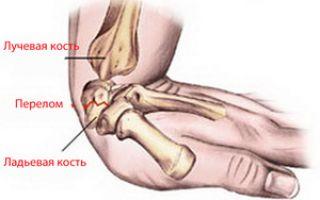 Болит рука при сгибе