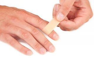 Вывих пальца руки лечение в домашних условиях