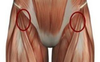 Растяжение связок тазобедренного сустава