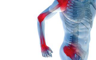 Боли в суставах рук причины и лечение