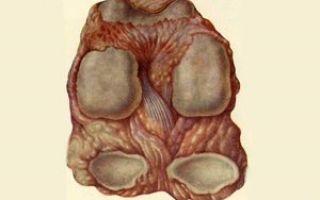 От чего болит тазобедренный сустав