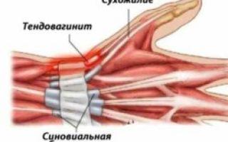 Воспаление сухожилий