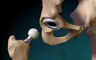 Что такое остеоартроз