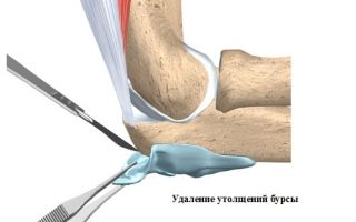 Посттравматический бурсит локтевого сустава