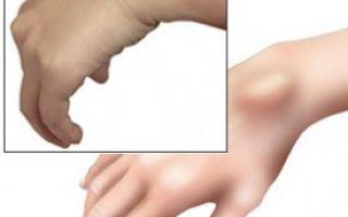 Гигрома плечевого сустава