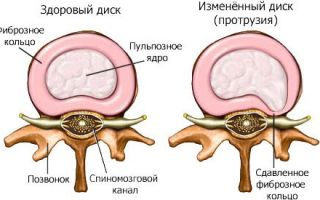 Протрузия шейных позвонков лечение