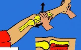 Латеральная связка коленного сустава
