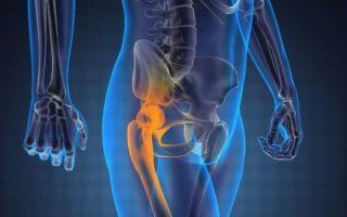 Боль в тазобедренных суставах после сидения