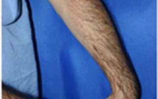 Как вылечить эпикондилит локтевого сустава