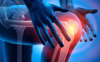 Лечение вывиха коленного сустава