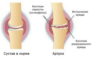 Болят суставы ног и рук лечение