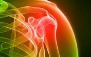 Чем лечить плечелопаточный периартрит