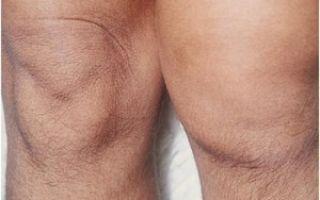 Лечение хламидийного артрита