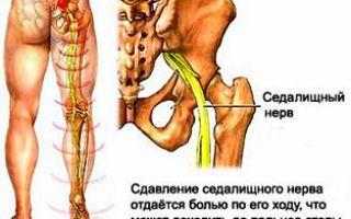Боль в левом бедре при ходьбе