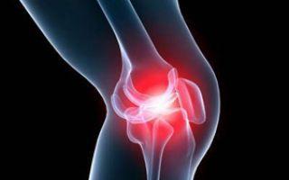 Артрит коленного сустава 2 степени