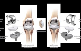 Что такое эндопротезирование коленного сустава