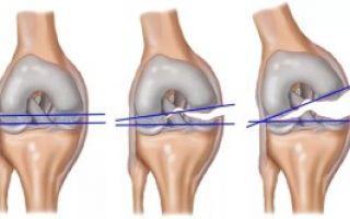 Повреждение связок коленного сустава как лечить