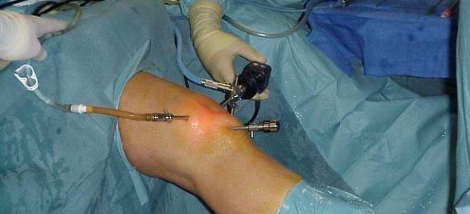 Медиальный мениск коленного сустава лечение